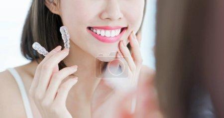 牙齿美容图片